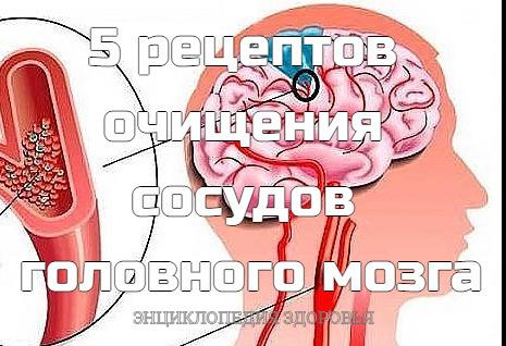 Очищение сосудов головного мозга  уникальные методики: