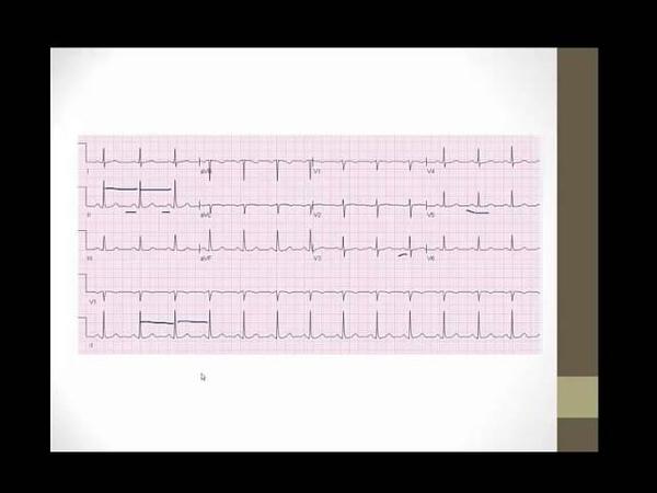 USMLE Step 1: High Yield EKGs