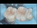 Реставрация боковых зубов композитом Capo Natural. Posterior teeth restoration