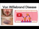 Von Willebrand disease Platelet adhesion and aggregation MADE EASY