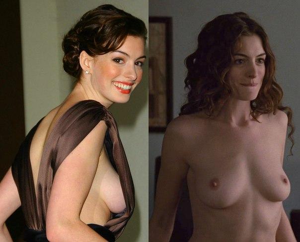 Anne Hathaway Topless Next To Ben Affleck