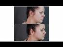 До и после аугментации углов нижней челюсти и подбородка. Выполнил врач-косметолог Алишева Эльмира Абакаровна.