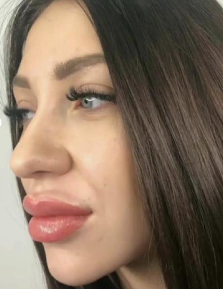 Алена Рапунцель хочет еще сильнее увеличить губы!