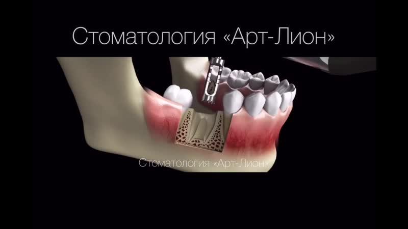 Процесс установки имплантов
